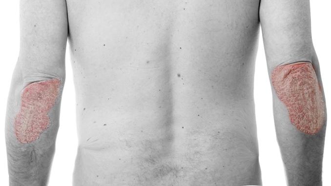 Dicke der bauchfalte entzündung unter Vorhautentzündung (Posthitis):