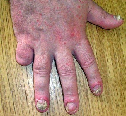 Nagelpsoriasis an mehreren Nägeln einer Hand