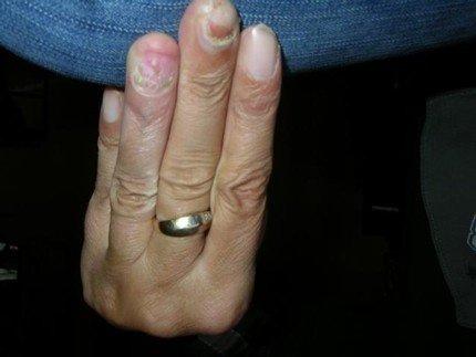 Nagelpsoriasis an der Hand