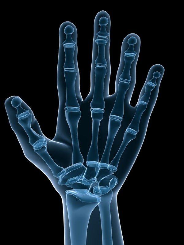 Formen der Psoriasis arthritis