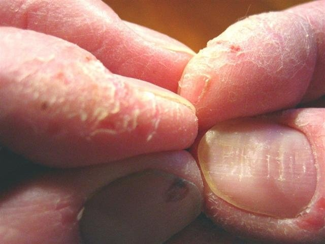 Schuppenflechte an den Fingerkuppen (vorher)