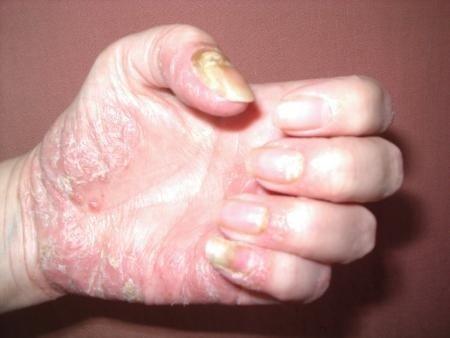 Psoriasis pustulosa an der Hand