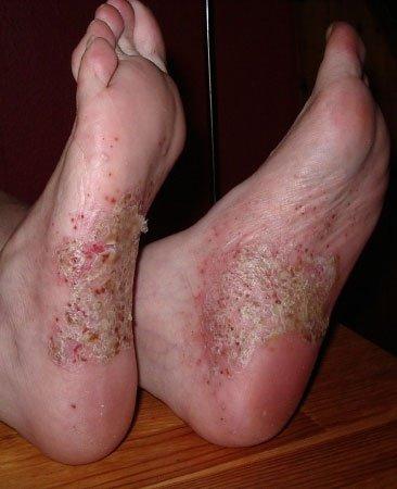 Psoriasis pustulosa an den Füßen