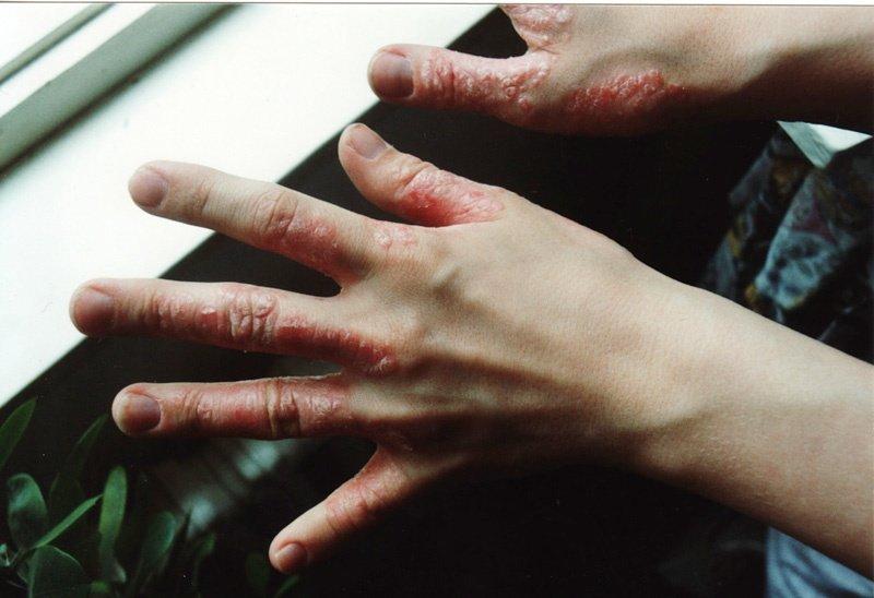 Schuppenflechte in den Fingerzwischenräumen