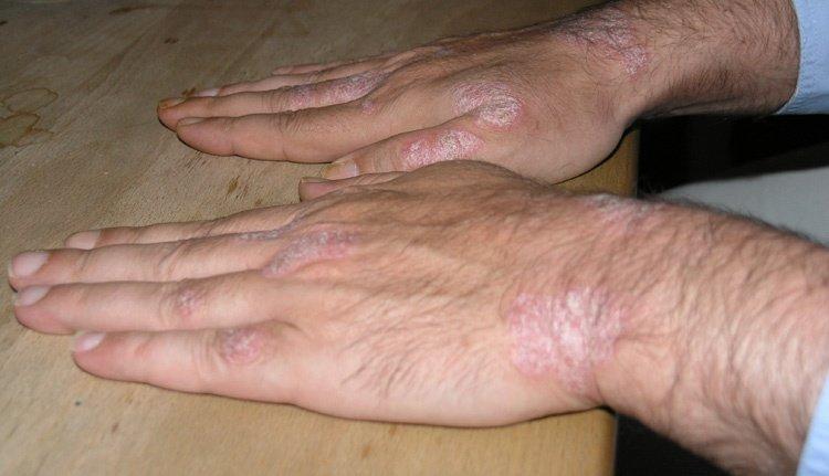 Schuppenflechte an der Hand-Oberseite