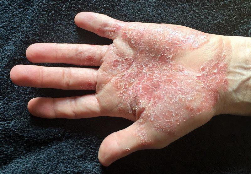 Psoriasis vulgaris palmoplantaris