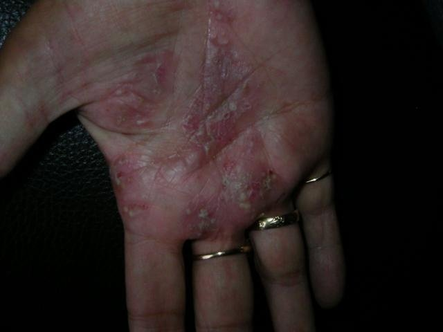 Akute Psoriasis an der Handfläche