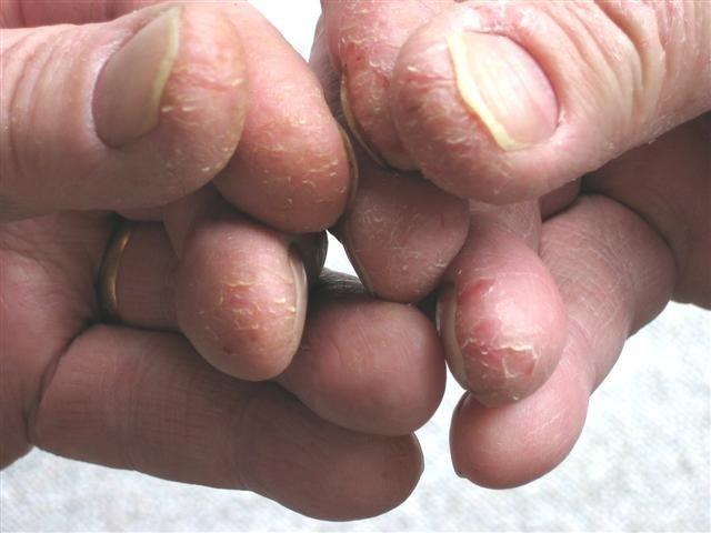 Schuppenflechte an den Fingerkuppen (nachher)