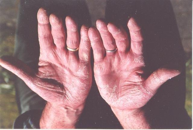 Schuppenflechte an den Handinnenflächen (vorher)