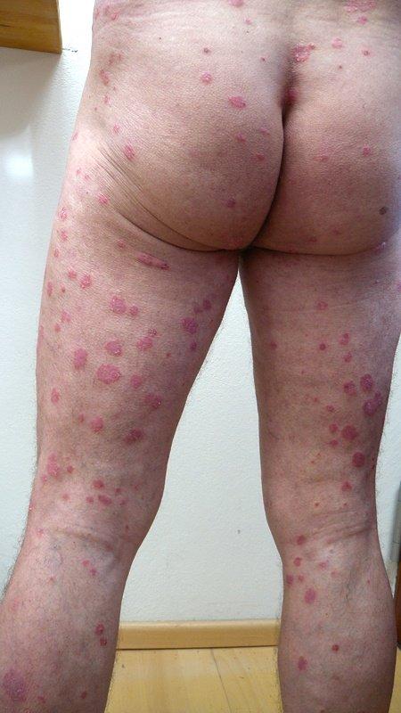 Psoriasis an den Beinen, am Po und am Rücken