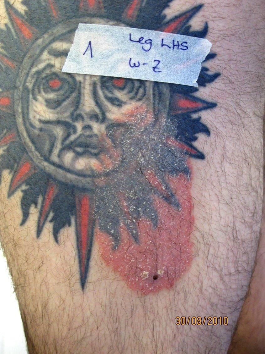 Psoriasis, hervorgerufen durch ein Tattoo
