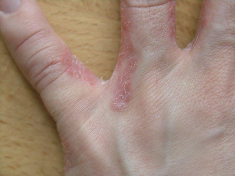 Schuppenflechte zwischen Fingern